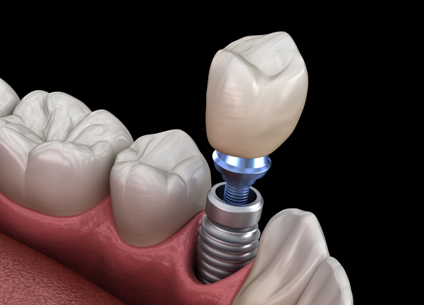 Why Might Dental Implants Be Needed
