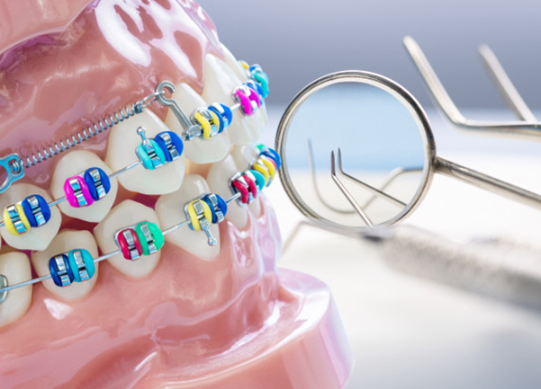Why Might Orthodontics Be Needed