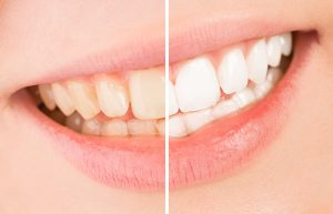 Care During And After Tooth Whitening Treatment